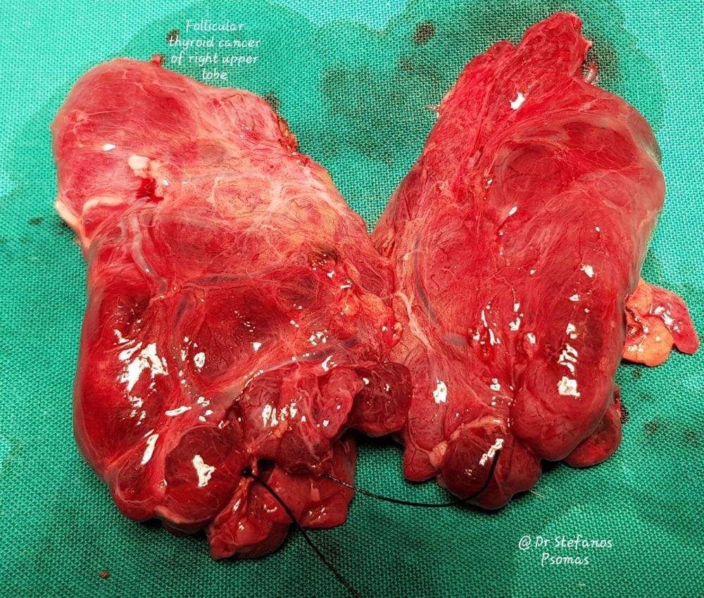 θηλακιώδες καρκίνωμα θυρεοειδούς