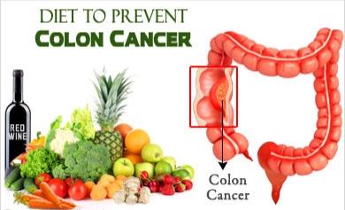 Συσχέτιση καρκίνου παχέος εντέρου και τροφών.